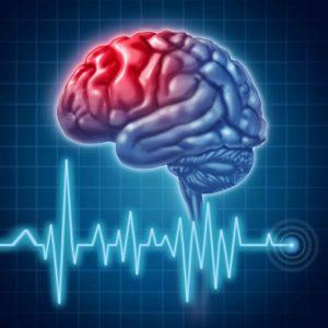 سکته مغزی در اثر زیاد نشستن