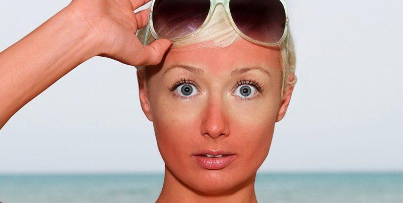 آفتاب سوختگی چیست و راههای درمان پوست آفتاب سوخته چیست؟
