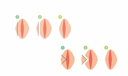 لابیاپلاستی چیست؟ (عمل زیبایی واژن، پرینورافی یا واژینوپلاستی (vaginoplasty))