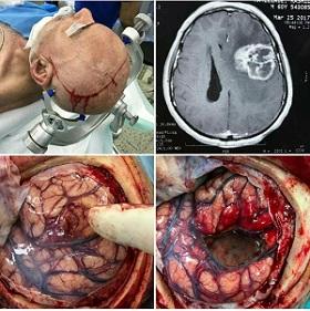 عمل جراحی توسط دکتر مسعود صابری
