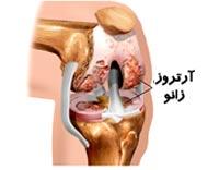 بیماری آرتروز زانو