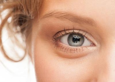 علت سیاهی زیر چشم + درمان خانگی گودی زیر چشم