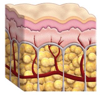 بیماری سلولیت چیست؟