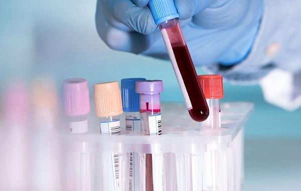بیماری ها چه اثراتی بر آزمایش خون دارند؟