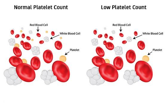 Plt در آزمایش خون چیست؟
